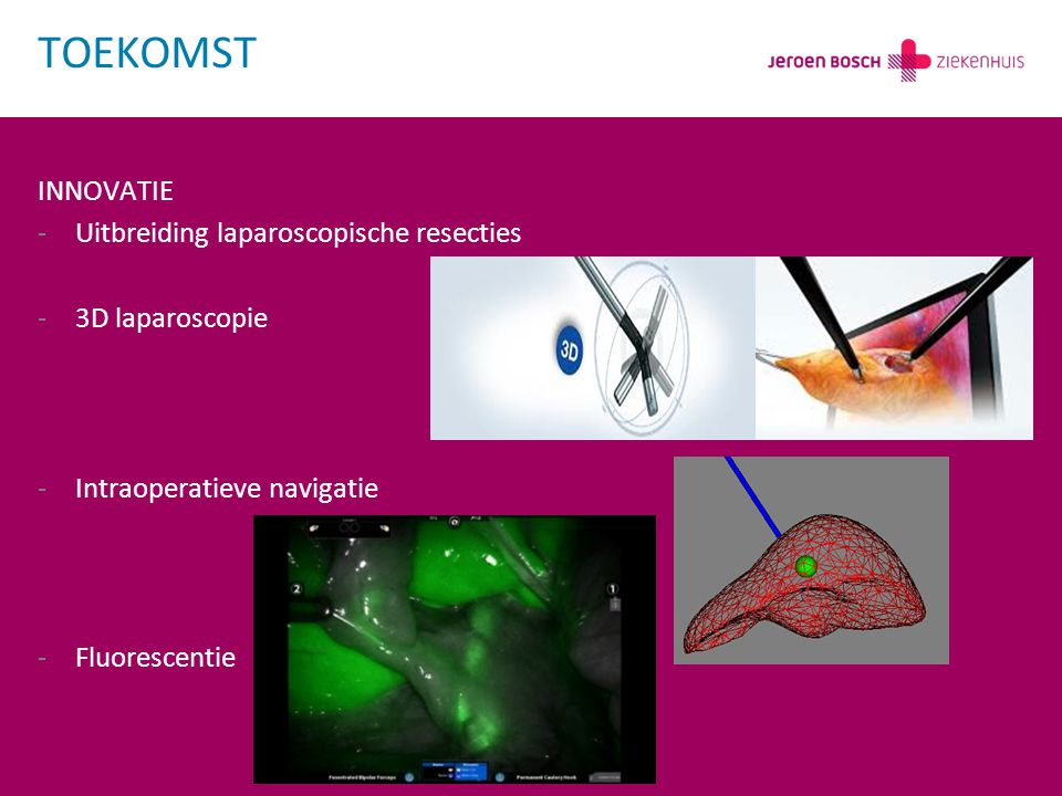 TOEKOMST INNOVATIE Uitbreiding laparoscopische resecties