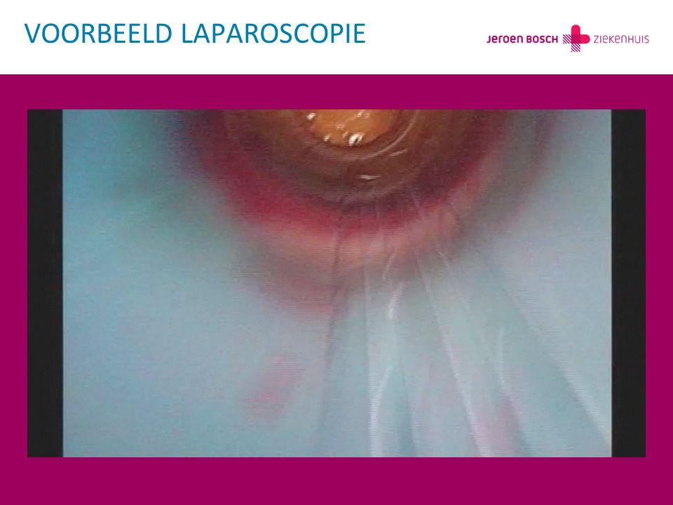 VOORBEELD LAPAROSCOPIE