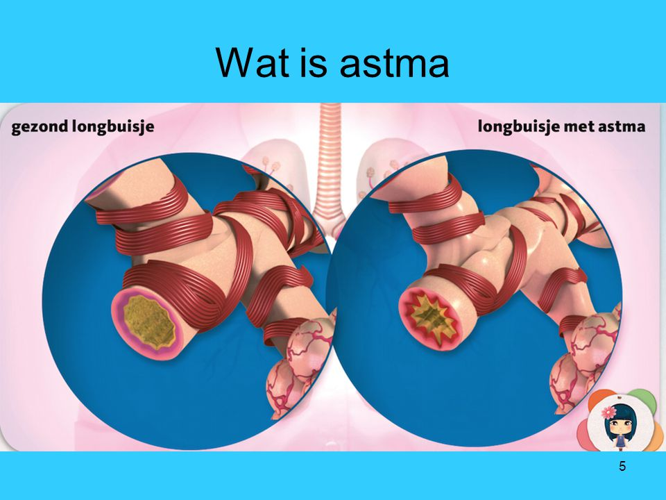 Wat is astma