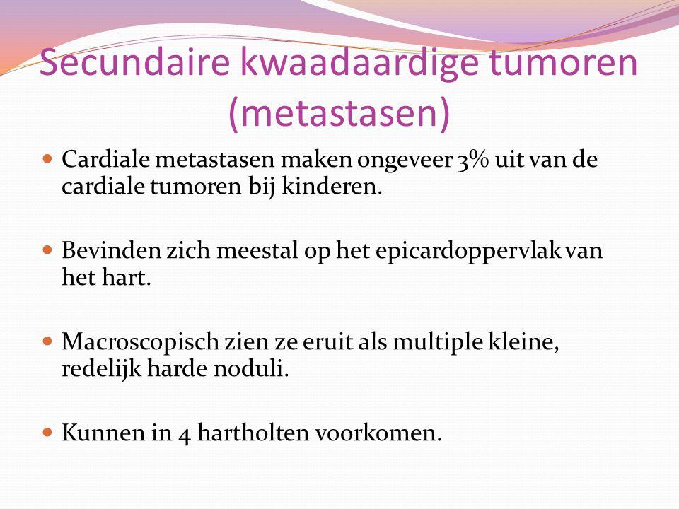 Secundaire kwaadaardige tumoren (metastasen)