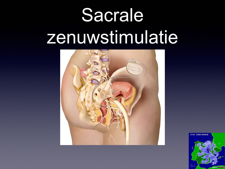 Sacrale zenuwstimulatie