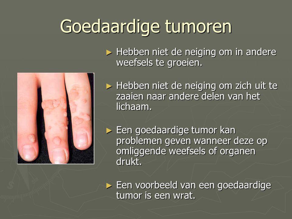 Goedaardige tumoren Hebben niet de neiging om in andere weefsels te groeien.