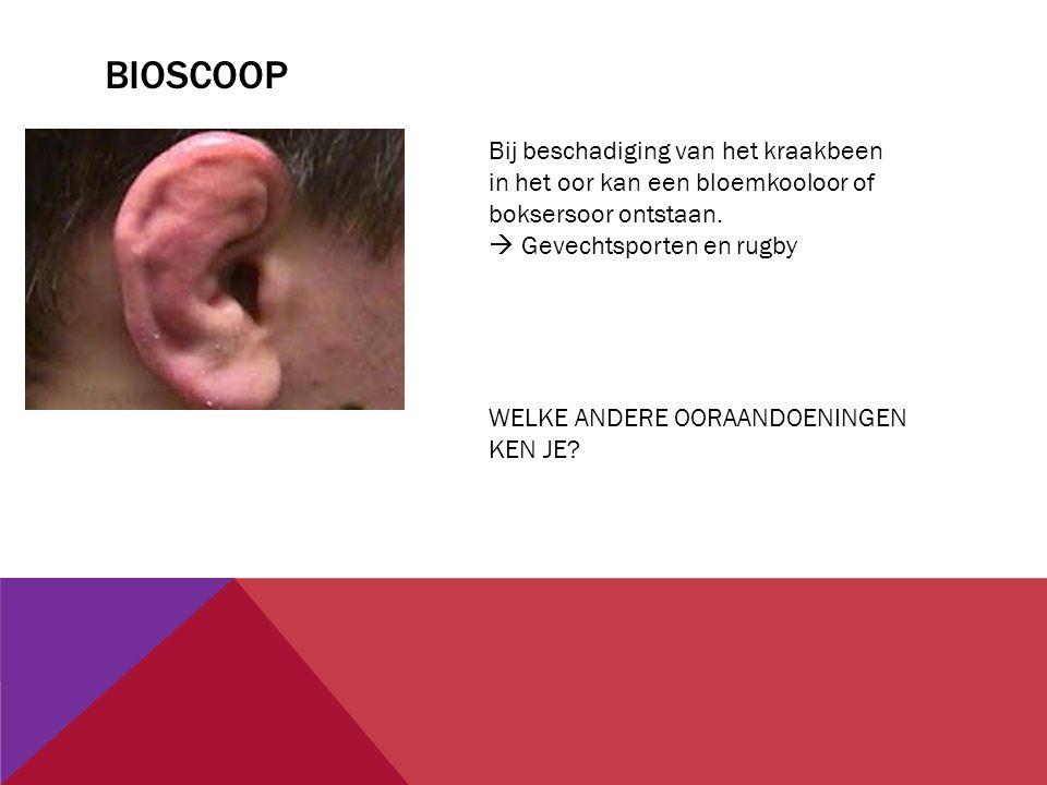 Bioscoop Bij beschadiging van het kraakbeen in het oor kan een bloemkooloor of boksersoor ontstaan.