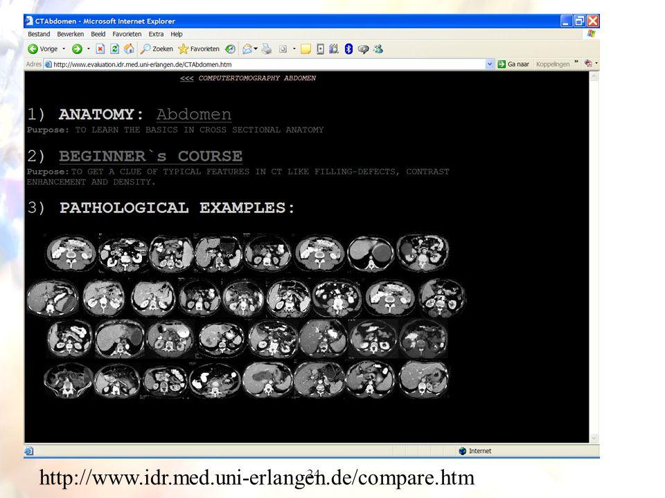 http://www.idr.med.uni-erlangen.de/compare.htm