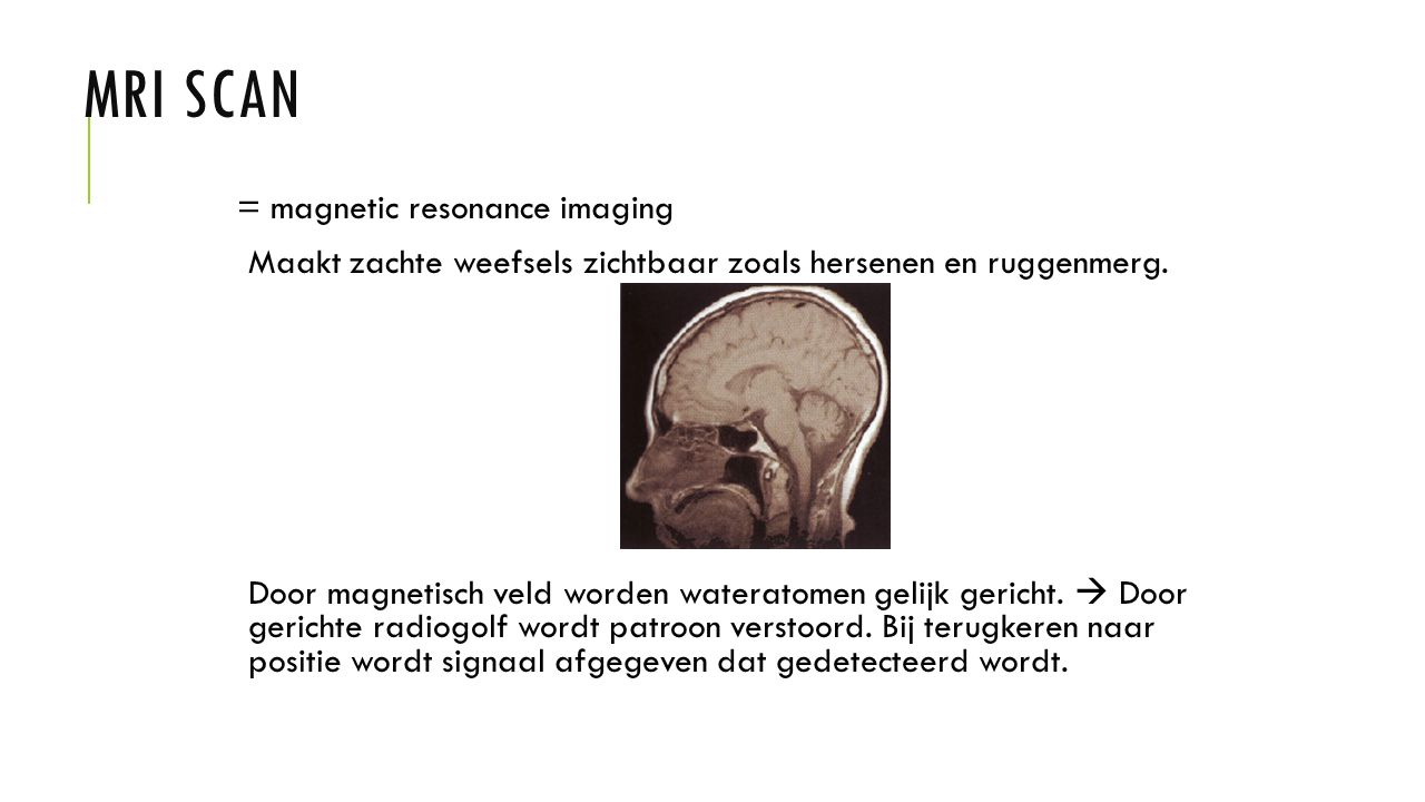 MRI scan = magnetic resonance imaging