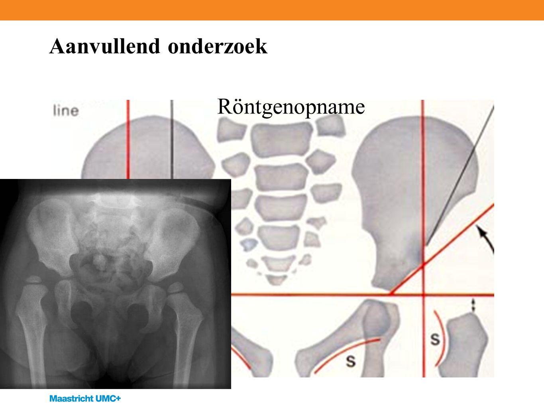 Aanvullend onderzoek Röntgenopname De conventionele röntgenfoto