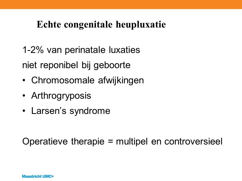 Echte congenitale heupluxatie