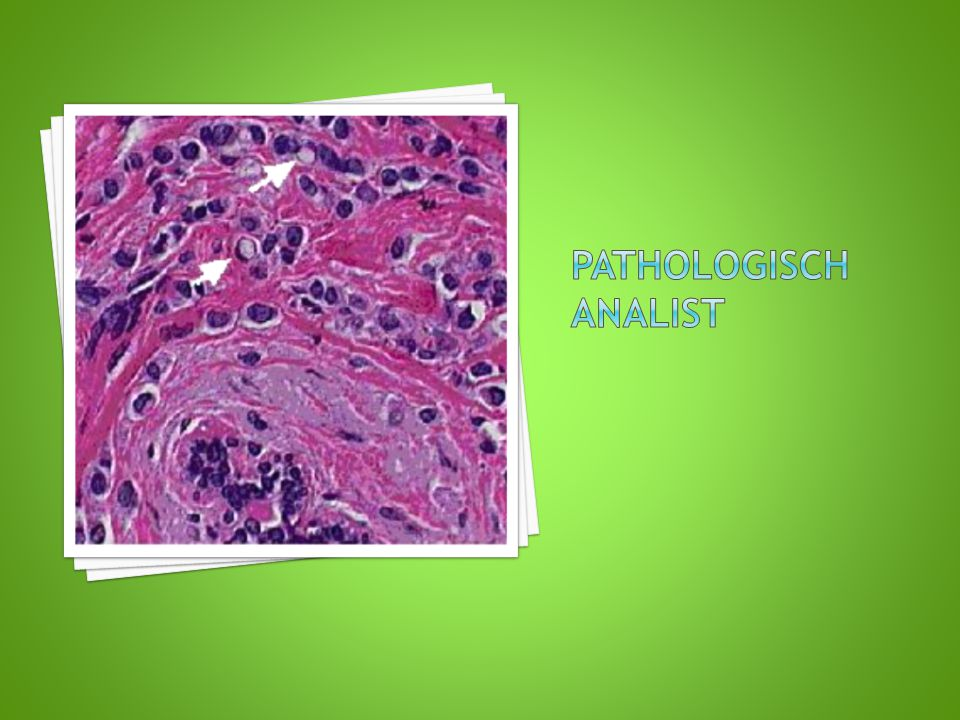 Pathologisch analist