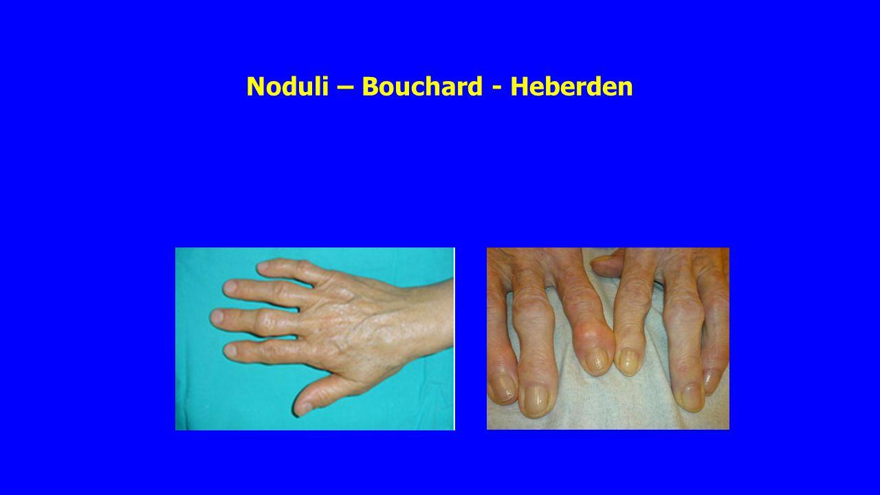Noduli – Bouchard - Heberden