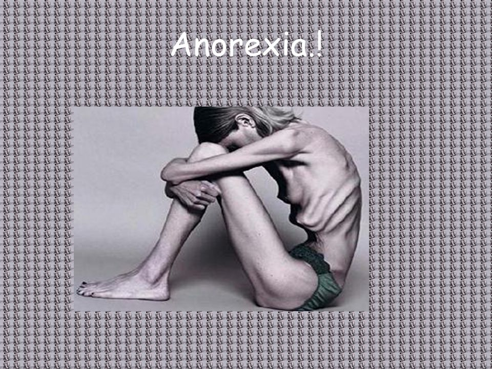 Anorexia.!