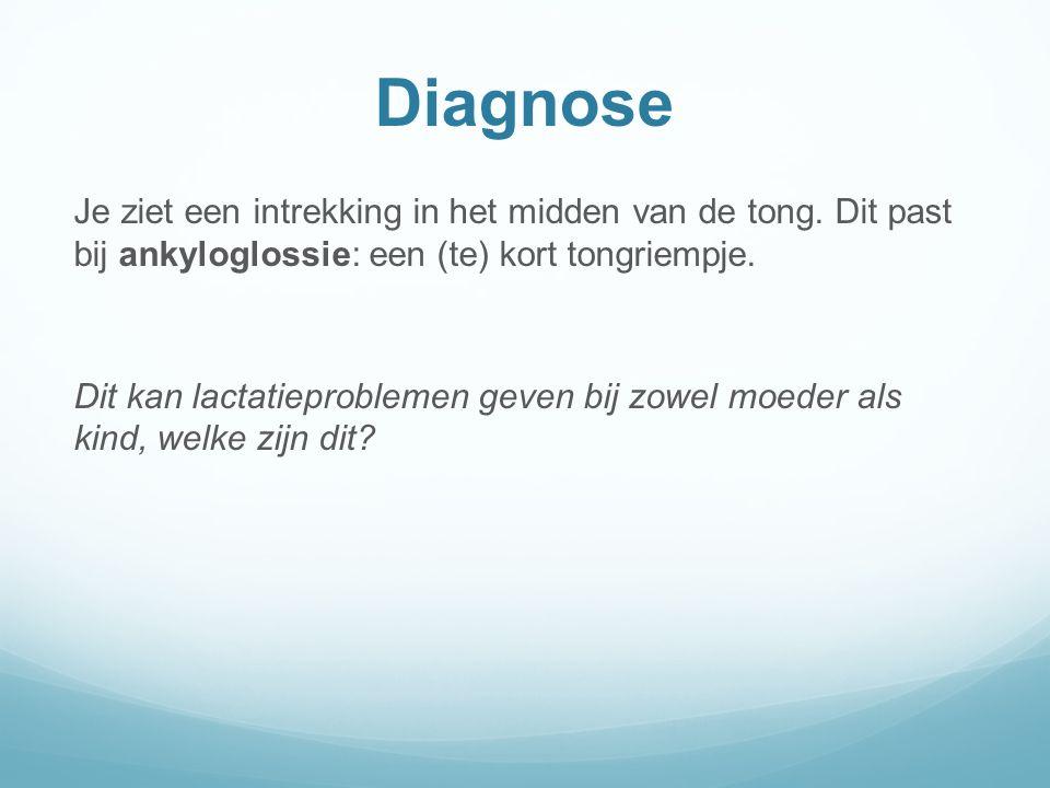 Diagnose Je ziet een intrekking in het midden van de tong. Dit past bij ankyloglossie: een (te) kort tongriempje.
