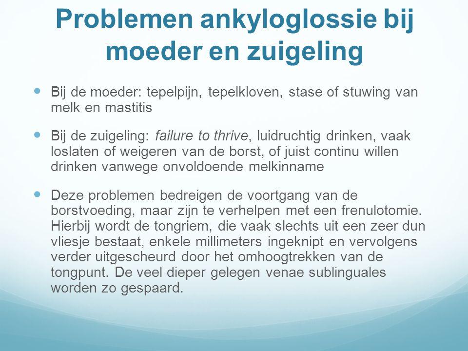 Problemen ankyloglossie bij moeder en zuigeling