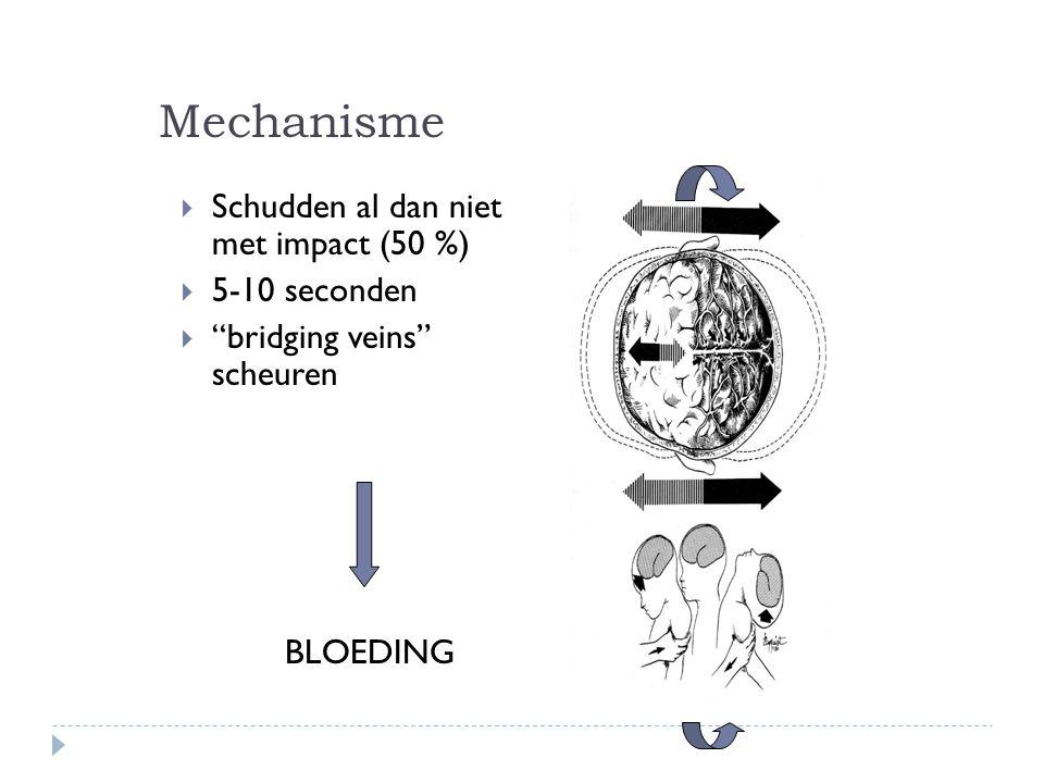 Mechanisme Schudden al dan niet met impact (50 %) 5-10 seconden