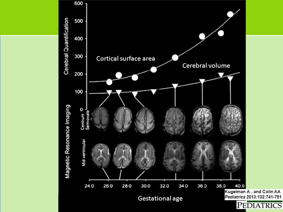 Cortical surface area Cerebral volume Gestational age