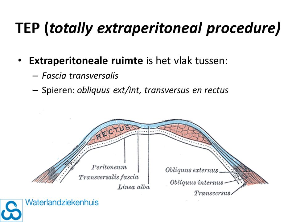 TEP (totally extraperitoneal procedure)