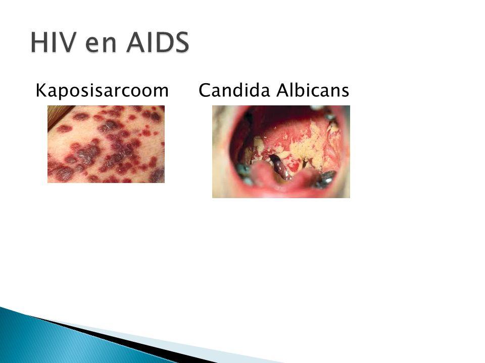 HIV en AIDS Kaposisarcoom Candida Albicans