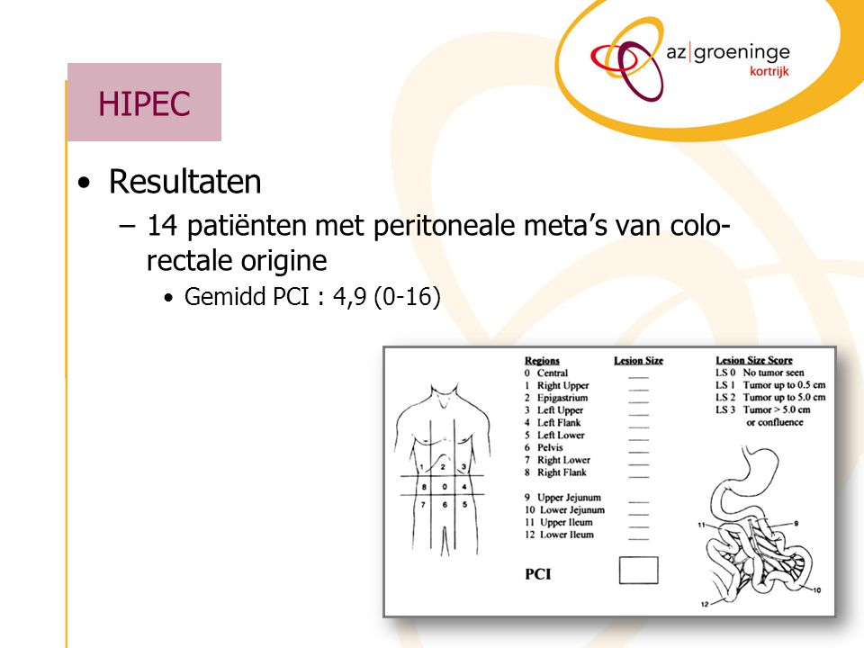 HIPEC Resultaten. 14 patiënten met peritoneale meta's van colo-rectale origine. Gemidd PCI : 4,9 (0-16)
