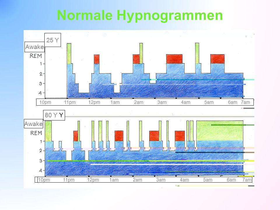 Normale Hypnogrammen Bild 2