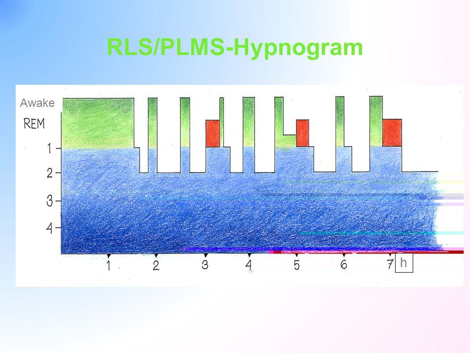 RLS/PLMS-Hypnogram Awake h