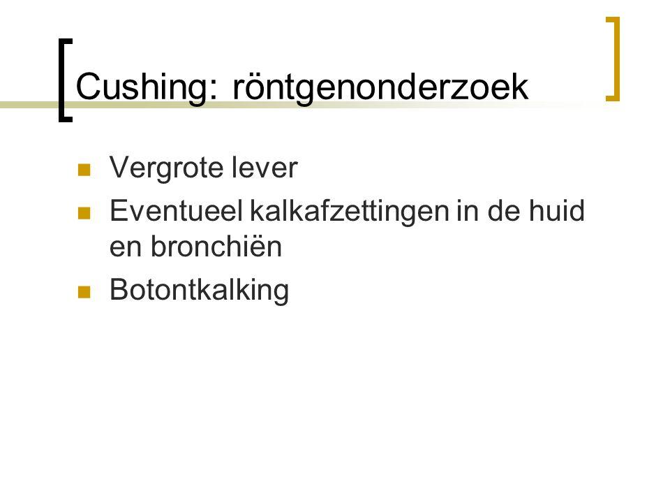 Cushing: röntgenonderzoek
