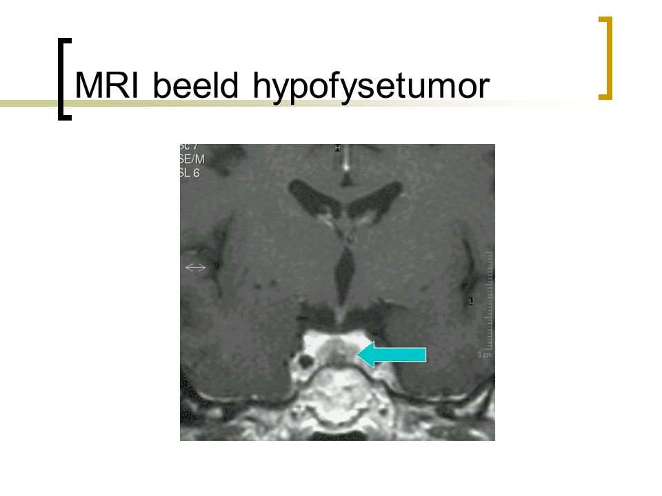 MRI beeld hypofysetumor