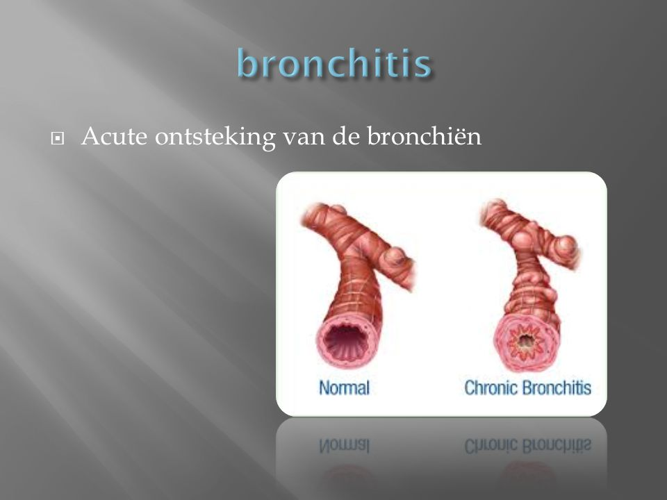 bronchitis Acute ontsteking van de bronchiën