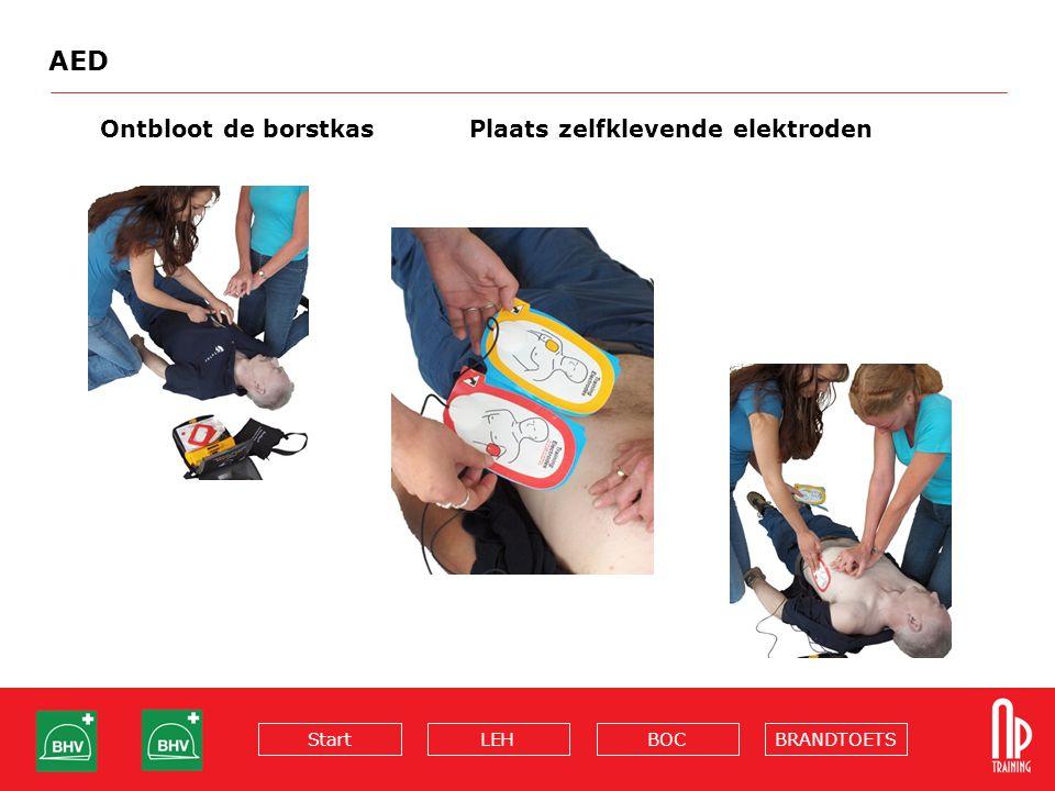 AED Ontbloot de borstkas Plaats zelfklevende elektroden