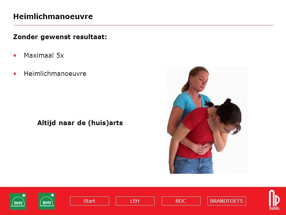 Heimlichmanoeuvre Zonder gewenst resultaat: Maximaal 5x