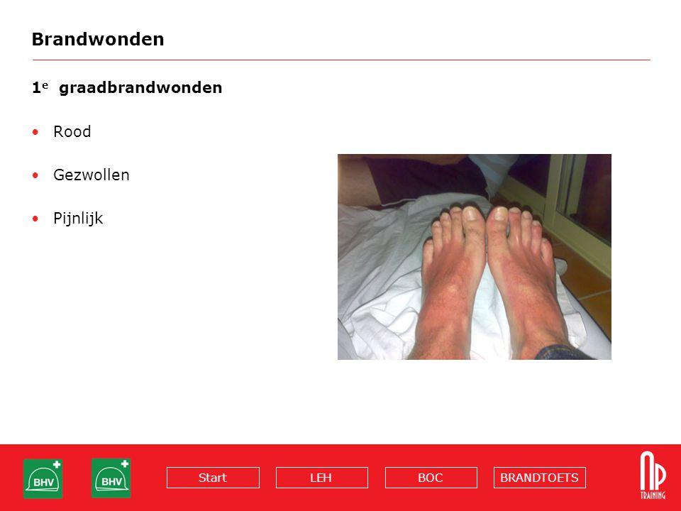 Brandwonden 1e graadbrandwonden Rood Gezwollen Pijnlijk