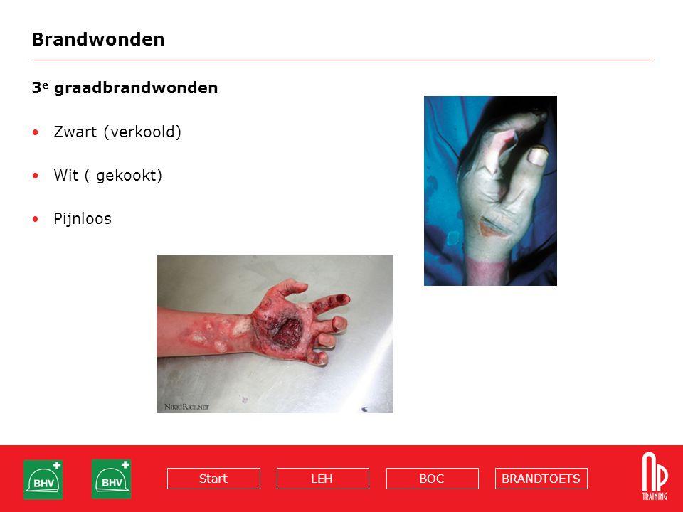 Brandwonden 3e graadbrandwonden Zwart (verkoold) Wit ( gekookt)