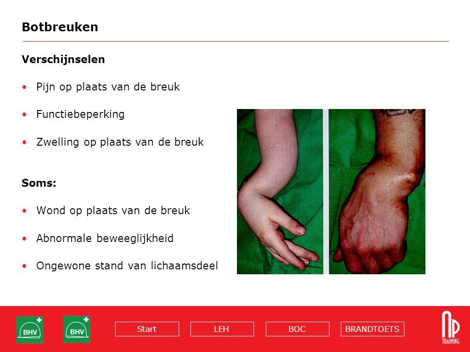 Botbreuken Verschijnselen Pijn op plaats van de breuk Functiebeperking