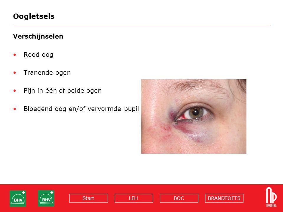 Oogletsels Verschijnselen Rood oog Tranende ogen