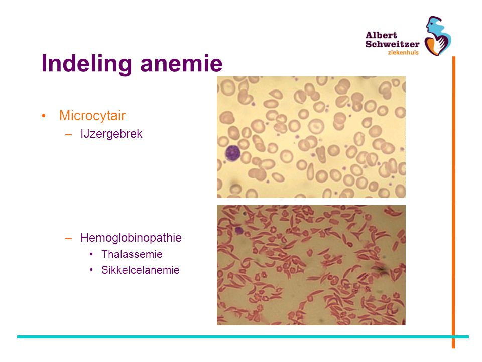 Indeling anemie Microcytair IJzergebrek Hemoglobinopathie Thalassemie
