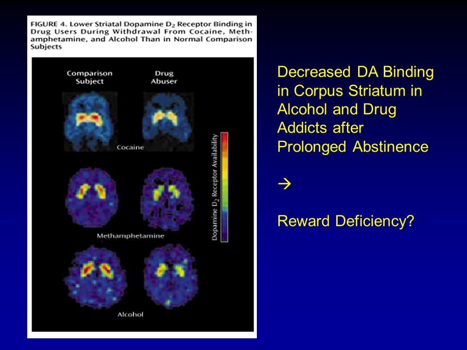 Decreased DA Binding in Corpus Striatum in Alcohol and Drug Addicts after Prolonged Abstinence  Reward Deficiency
