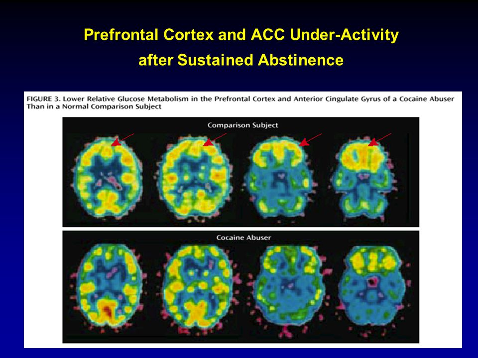 Prefrontal Cortex and ACC Under-Activity after Sustained Abstinence