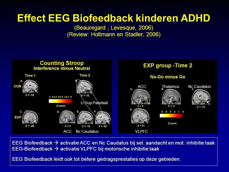 Effect EEG Biofeedback kinderen ADHD (Beauregard , Levesque, 2006) (Review: Holtmann en Stadler, 2006)