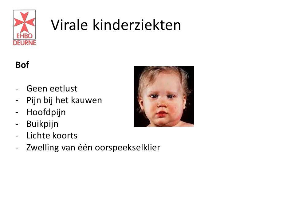 Virale kinderziekten Bof Geen eetlust Pijn bij het kauwen Hoofdpijn