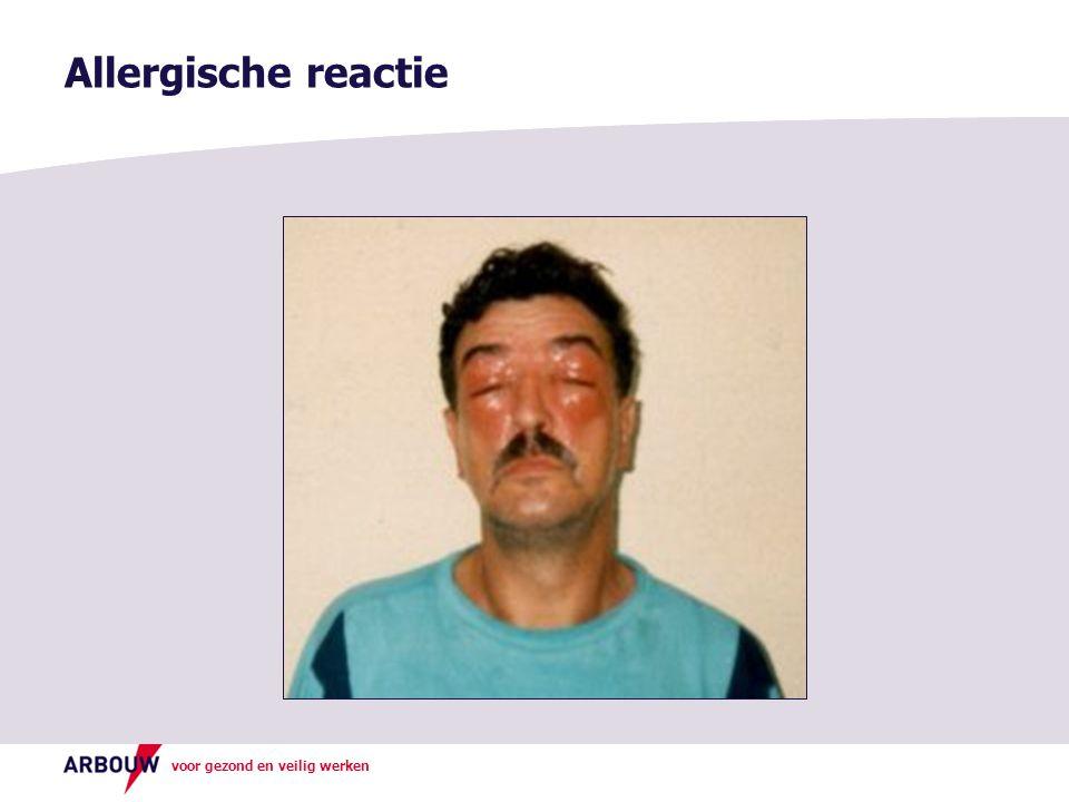 Allergische reactie