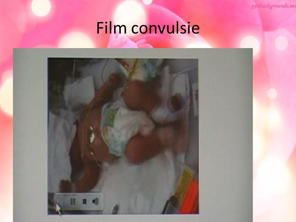 Film convulsie Film convulsie Hemiconvulsies