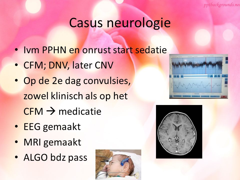Casus neurologie Ivm PPHN en onrust start sedatie CFM; DNV, later CNV