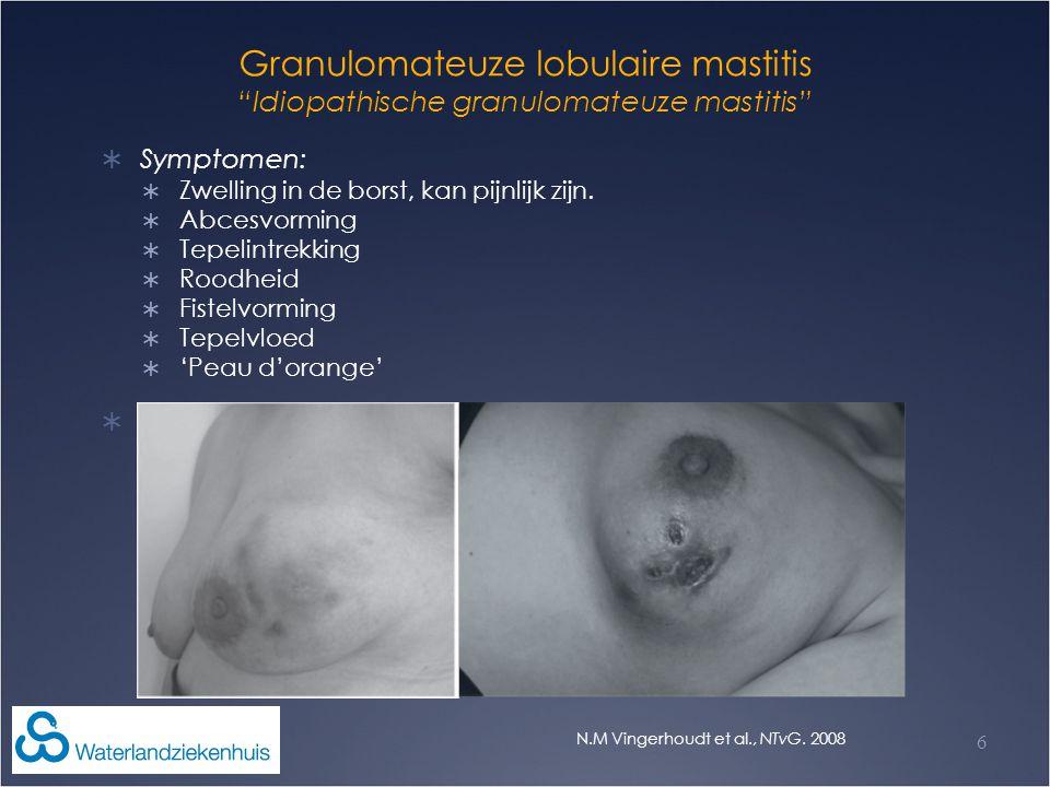 Granulomateuze lobulaire mastitis Idiopathische granulomateuze mastitis