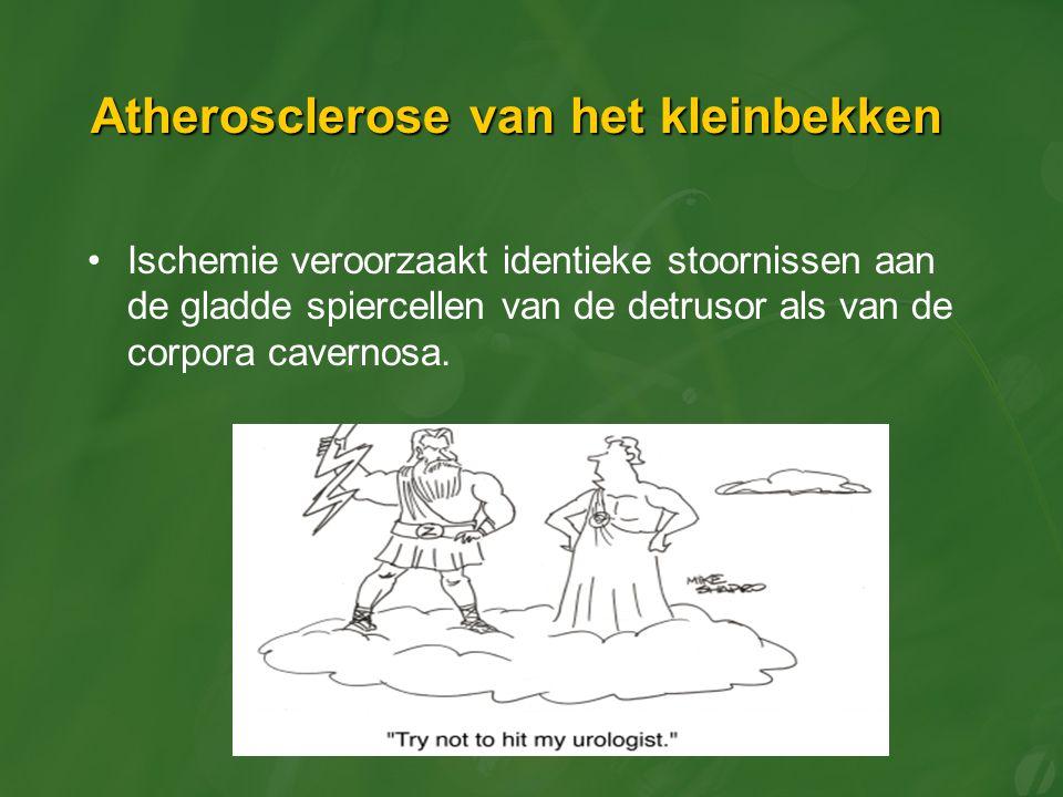 Atherosclerose van het kleinbekken