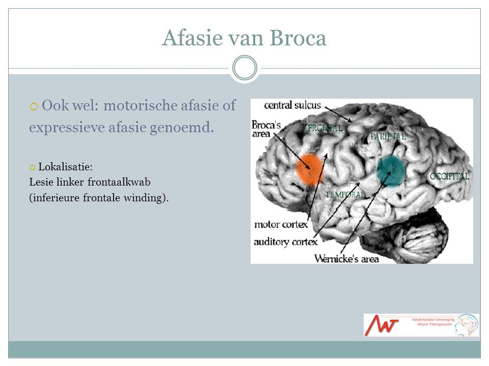Afasie van Broca Ook wel: motorische afasie of