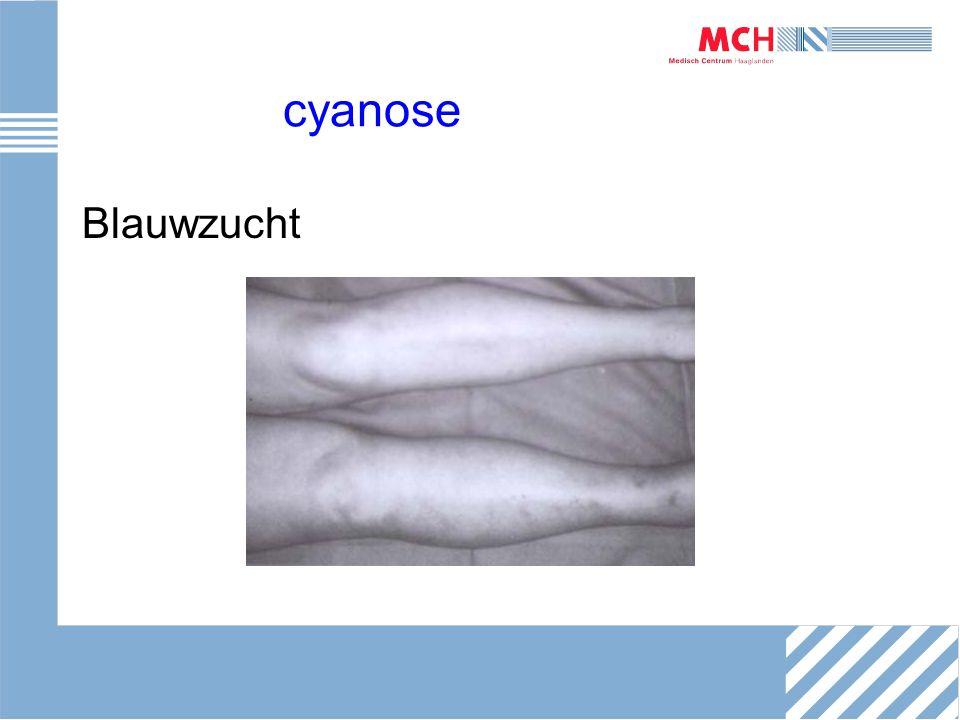 cyanose Blauwzucht