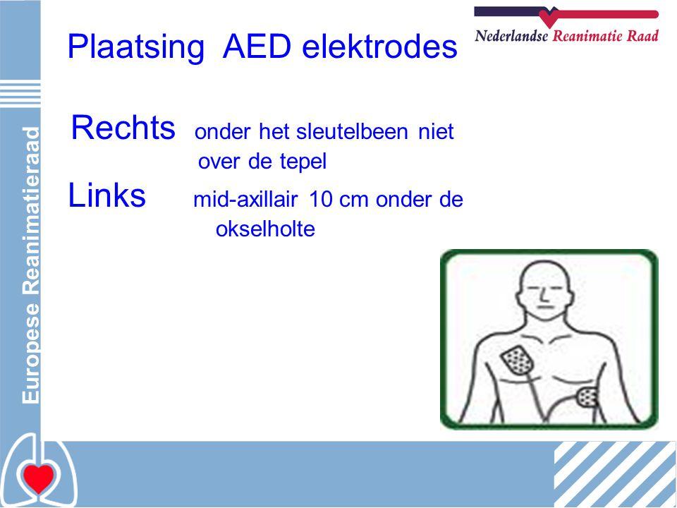 Plaatsing AED elektrodes Rechts onder het sleutelbeen niet over de tepel Links mid-axillair 10 cm onder de okselholte