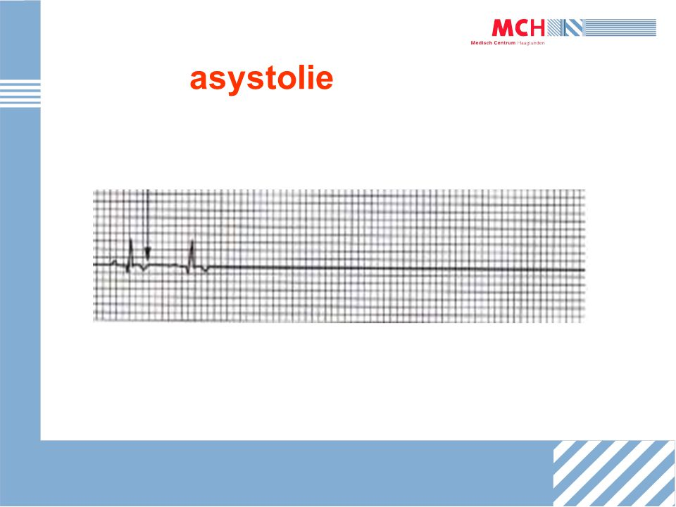asystolie