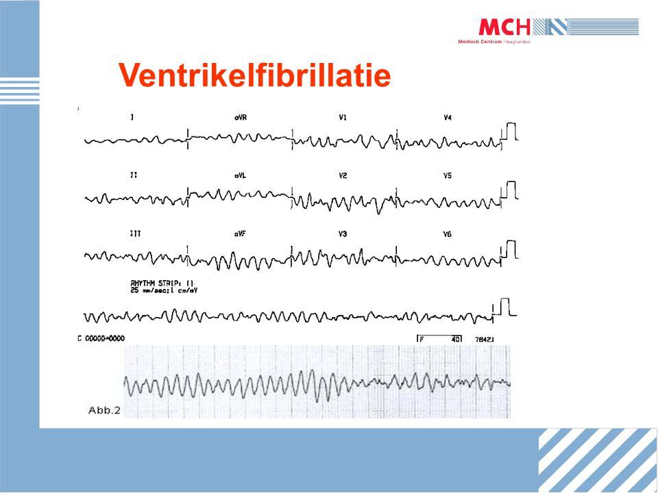 Ventrikelfibrillatie