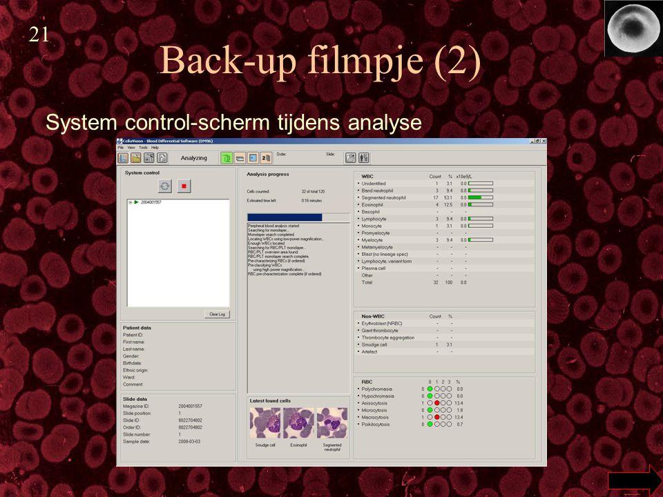 21 Back-up filmpje (2) System control-scherm tijdens analyse