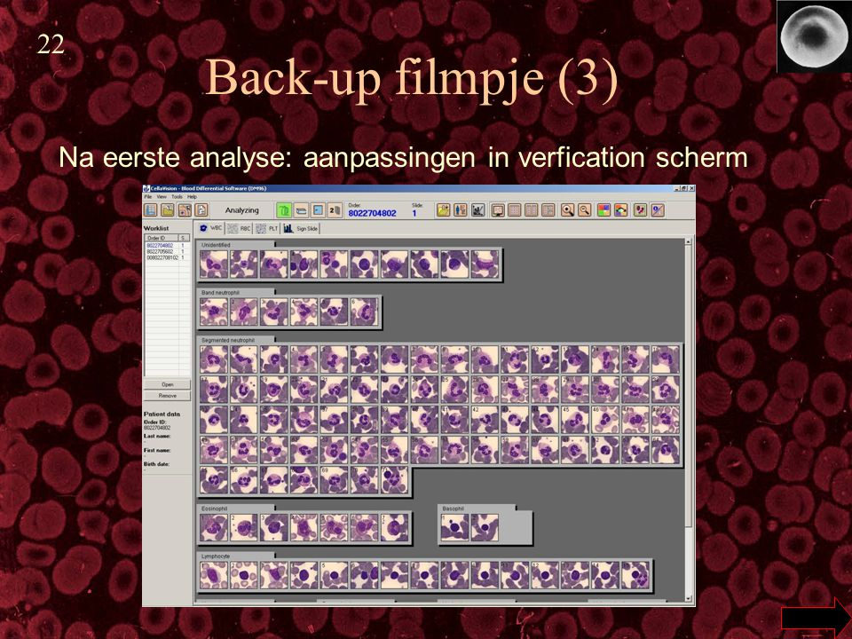 22 Back-up filmpje (3) Na eerste analyse: aanpassingen in verfication scherm