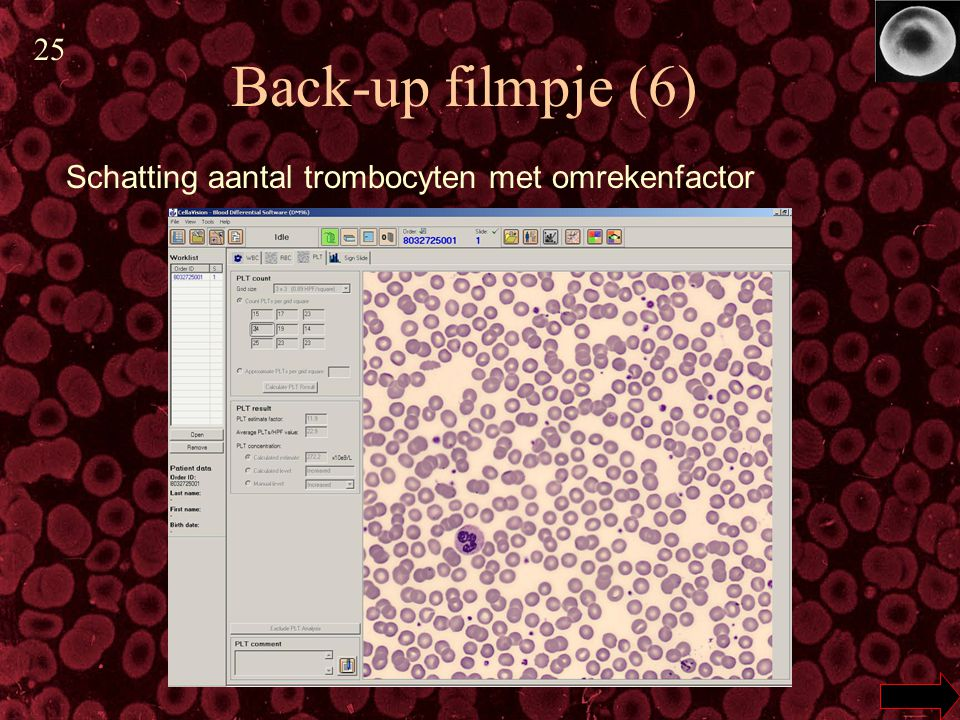 25 Back-up filmpje (6) Schatting aantal trombocyten met omrekenfactor